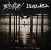 Depression - Haemorrhage
